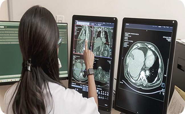 resonancia magnética de los senos